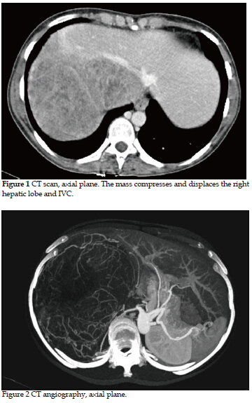 Adult neuroblastoma